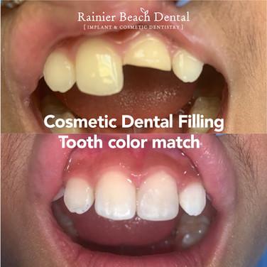 Rainier Beach Dental - Cosmetic Dental F