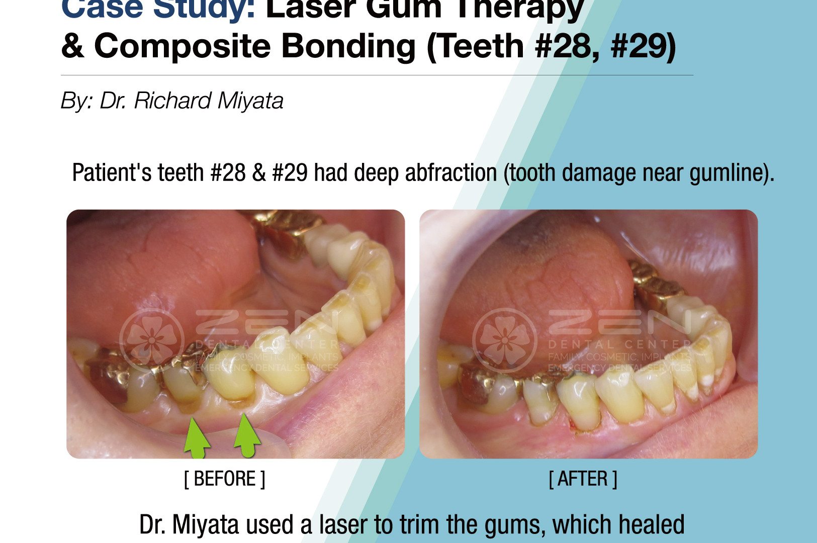 Case Study: Laser Gum Therapy & Composite Bonding (Teeth #28, 29)