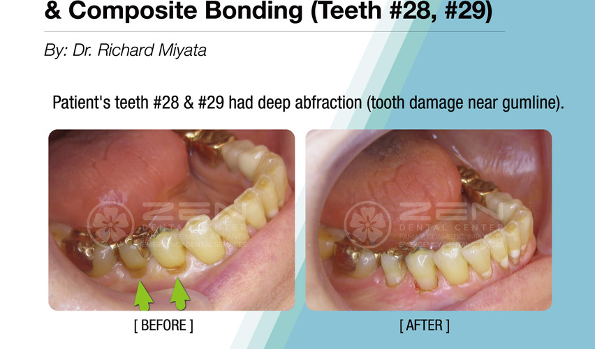 Case Study: Laser Gum Therapy & Composite Bonding (Teeth #28, 29)