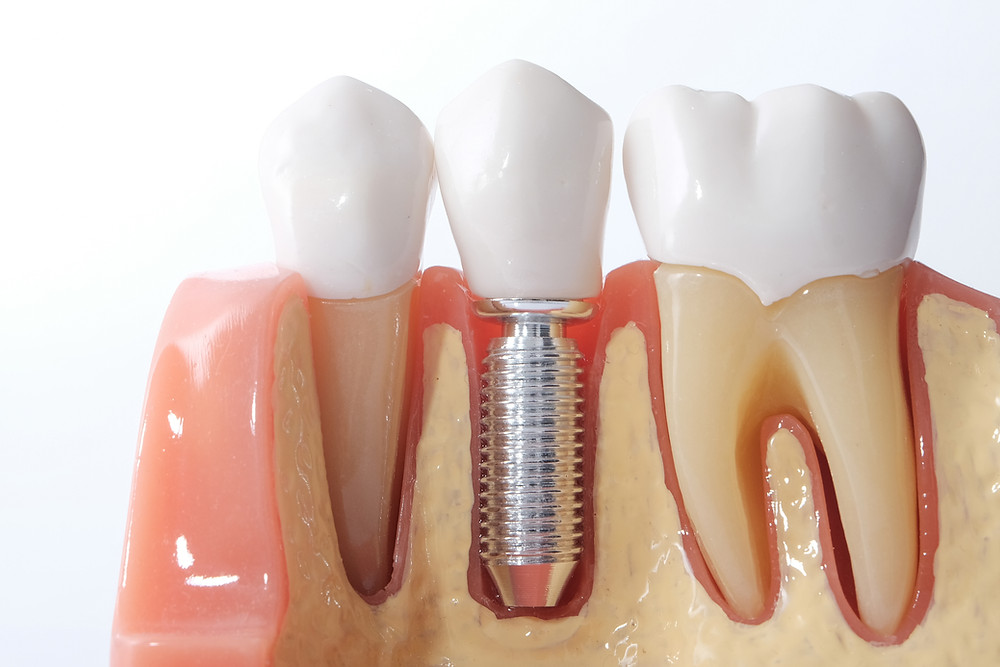 Step By Step Two Stage Dental Implant Procedure In Mckinney Ck Dental City
