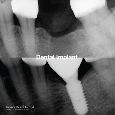 Rainier Beach Dental_Dental Implant