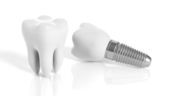 Zen Dental Center-Family Cosmetic Emergency Implant
