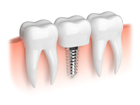 Step By Step: Two Stage Dental Implant Procedure - Learn from your emergency dentist in Seattle, WA