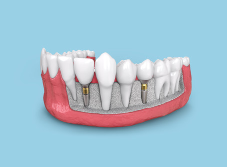Step By Step: Two Stage Dental Implant Procedure - Your General dentist in Lewisville, Texas