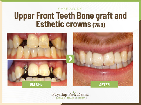 Upper Front Teeth Bone Graft And Esthetic Crowns