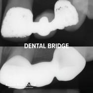 Rainier Beach Dental_Dental Bridge_2.jpg