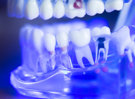 How To Tell When You Need A Root Canal, Explained By Your General Dentist in Salem, Oregon