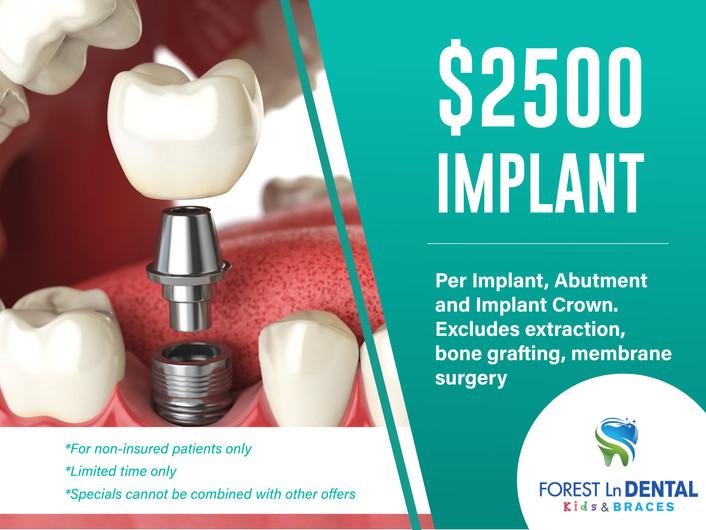 Forest Lane Dental_$2500 Implant