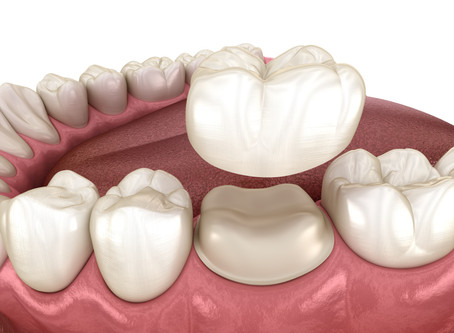 How a Dental Crown Restores a Tooth, From Your Family & General Dentist in Seattle, Washington