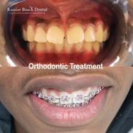 Rainier Beach Dental_Orthodontic Treatment
