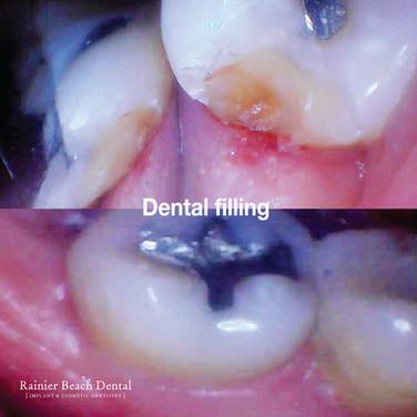Rainier Beach dental_Dental Filling (Jas