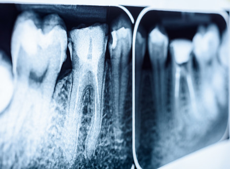 How To Tell When You Need A Root Canal, Explained By Your General Dentist in Cedar Park, Texas