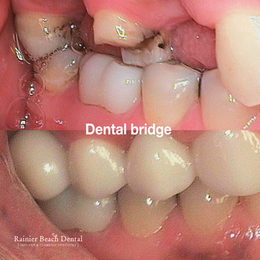 Rainier Beach dental_Dental bridge (Prin
