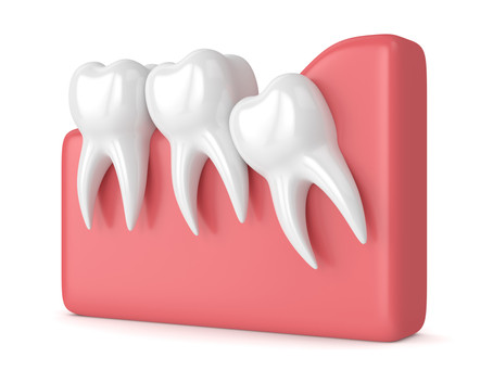 What Happens If I Don't Remove My Impacted Wisdom Teeth? Your Family Dentist in Renton, WA Explains
