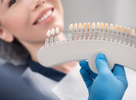 Your McKinney Cosmetic Dentist Explains Dental Veneers