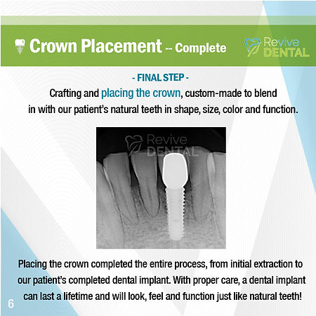 Revive Dental_Case Study_Implant_032219_