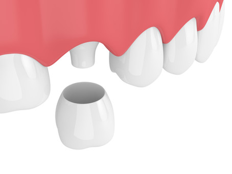 How a Dental Crown Restores a Tooth, From Your Family and General Dentist in Portland, Oregon