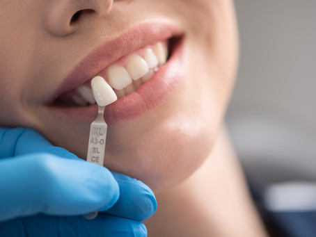 Your General and Cosmetic Dentist in Auburn, Washington Explains Dental Veneers