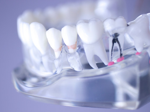 People in Vancouver, Washington Ask: Do I Need A Root Canal?