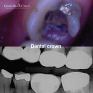 Rainier Beach dental_Dental Crown (Jenni