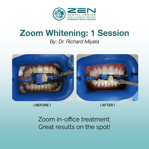 Zoom Whitening: Session