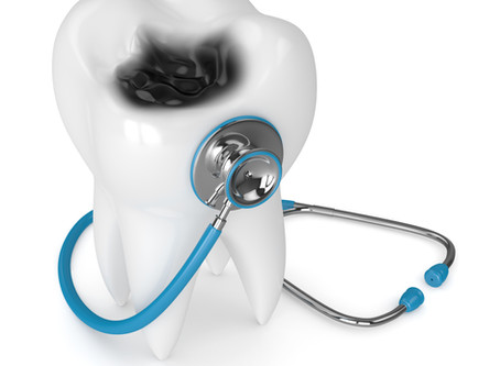 All About Cavities! Your Emergency Dentist in Beaverton Explains