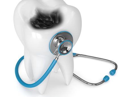 All About Cavities! Your General and Emergency Dentist in Beaverton, Oregon Explains