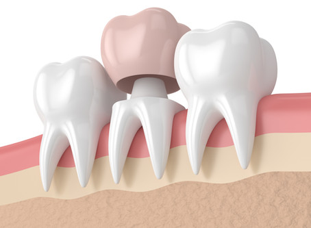 How a Dental Crown Restores a Tooth, From Your Family and General Dentist in Salem, Oregon