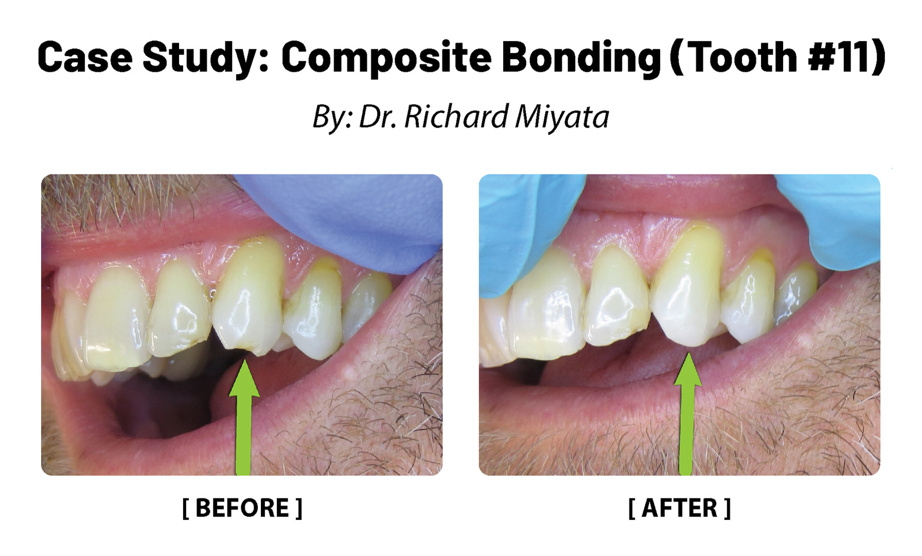 Case Study: Composite Bonding (Tooth 11)