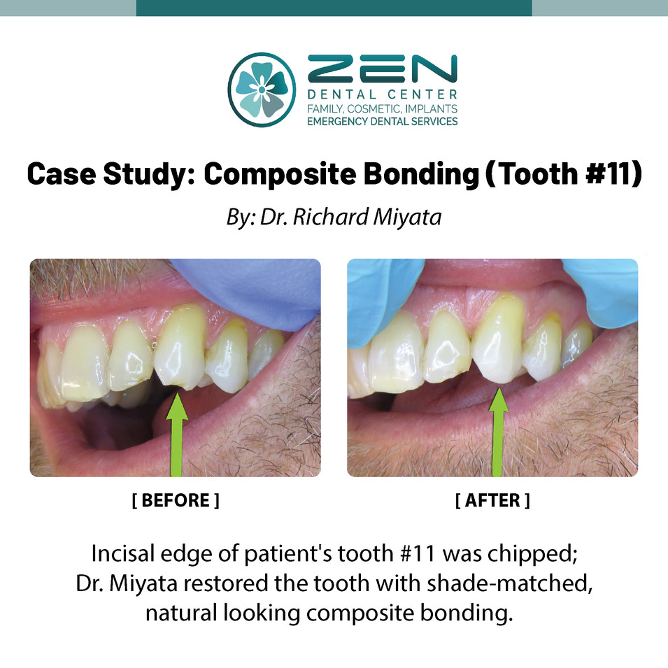Composite Bonding (Tooth #11)