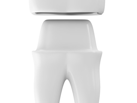 How is a Dental Crown Delivered? Your Family & General Dentist in Irving, TX Describes the Process