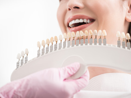 Your Cosmetic Dentist in Lewisville, Texas Explains Dental Veneers