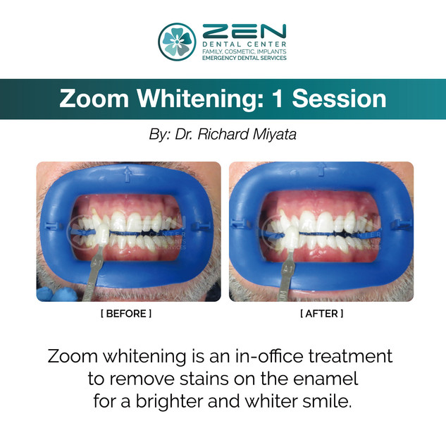 Zoom Whitening: 1 Session