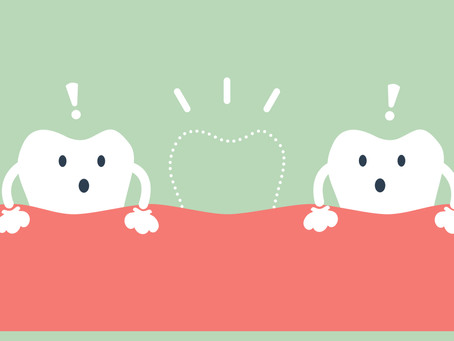 Seattle Residents Ask: What Are the Consequences of Missing Teeth?