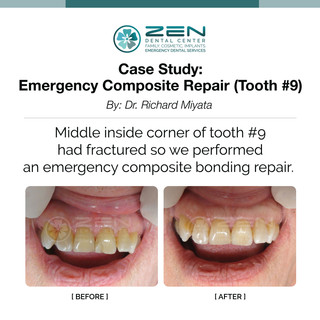 Emergency Composite Repair (Tooth #9)