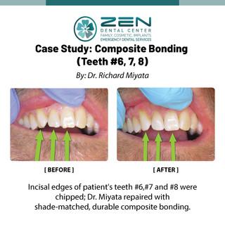 Composite Bonding (Teeth #6, 7, 8)