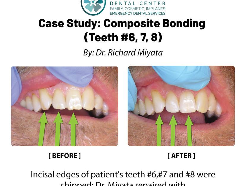 Case Study: Composte Boding (Teeth #6,7,8)