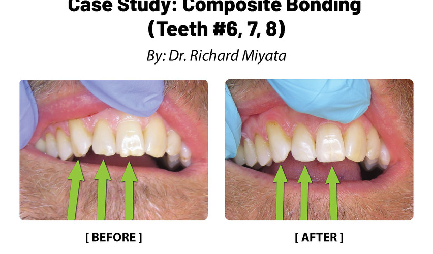 Case Study: Composte Boding (Teeth #6,7,8)