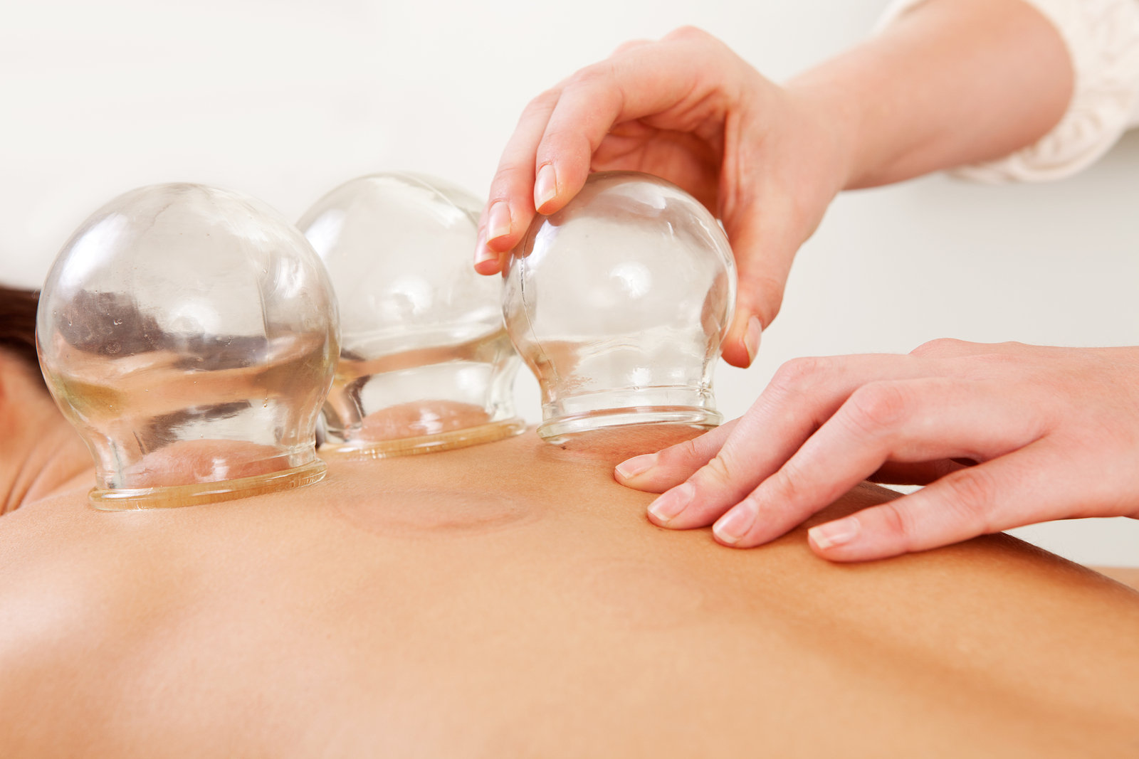 Initial Cupping Therapy