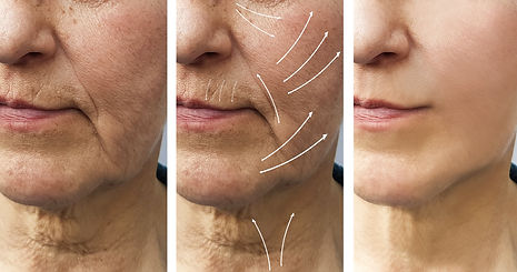 bigstock-Woman-Elderly-Facial-Wrinkles--