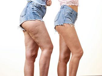 bigstock-Comparison-Of-Female-Legs-Thig-