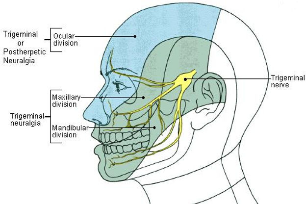 Trigeminal-Neuralgia-Diagram_30-July-201