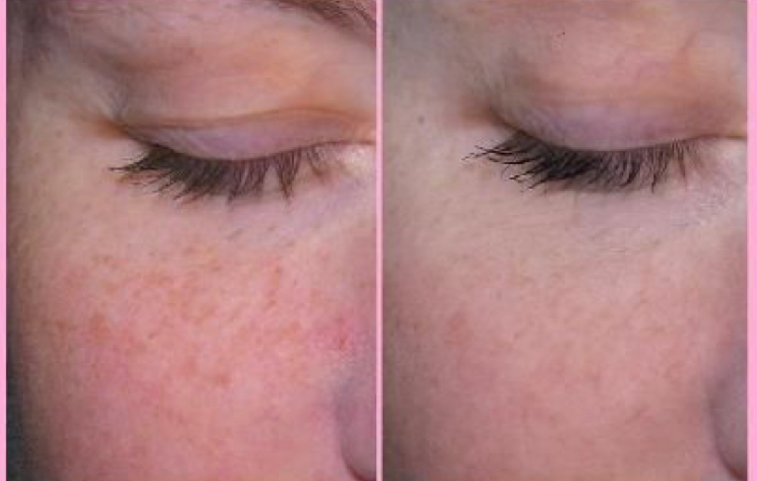 LED before and after pic pigmentation gr