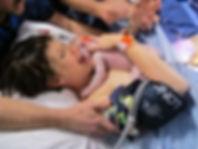 Technique for Caesarean Birth Hypnobirthing Gold Coast