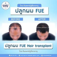 FUE_BF-AF-04.jpg