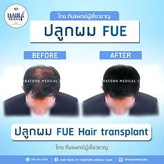 FUE_BF-AF-03.jpg