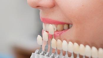 Dental Veneers in Corpus Christi Dentist