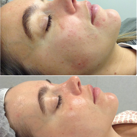 Christina's Journey - Congestion and Sluggish Skin