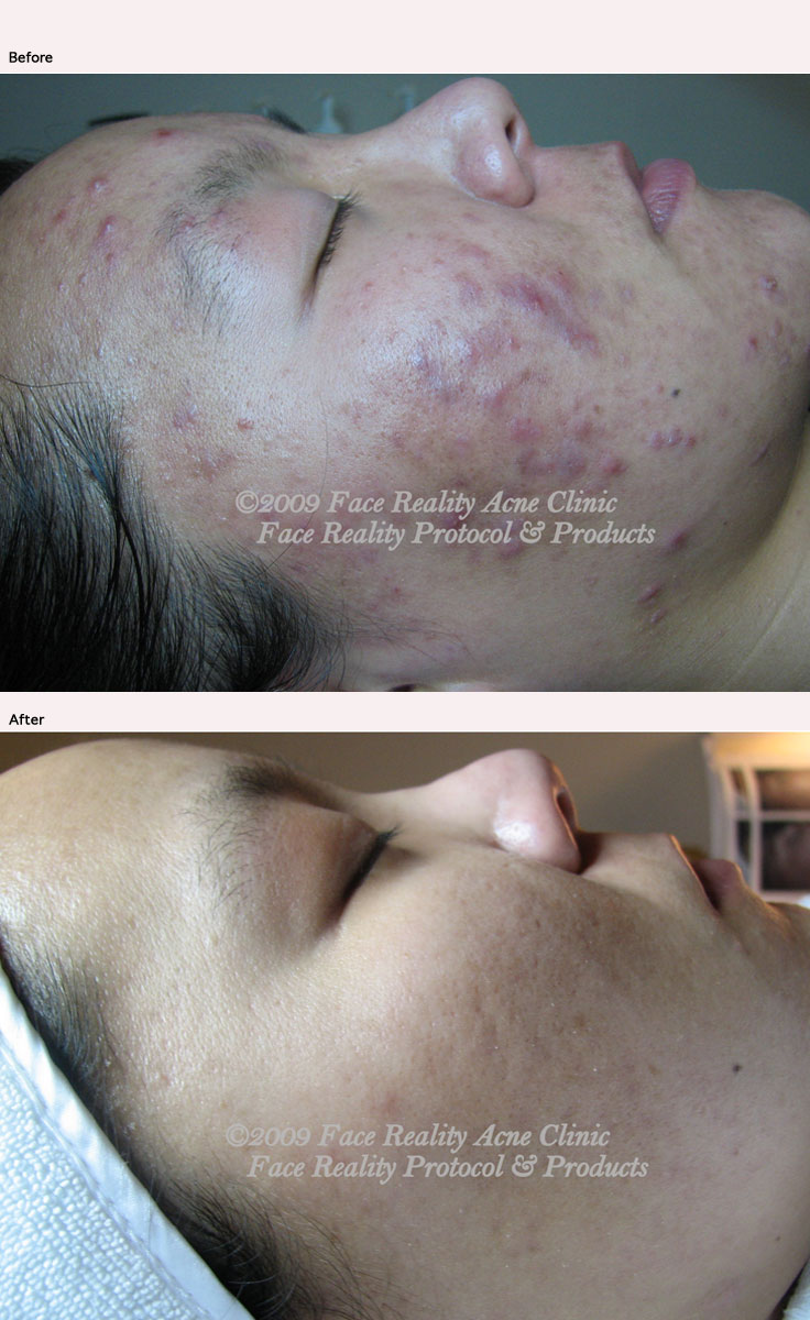 Clearing acne!