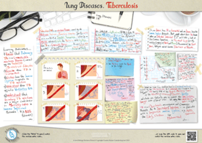 A-Level Biology Lung Disease - Tuberculosis (TB) Revision Notes Poster A3 PDF